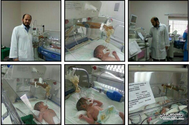 سعودية ٤ توائم مستشفى حراء