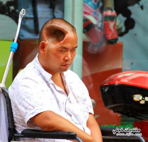 صيني يعيش وجود فجوه رأسه