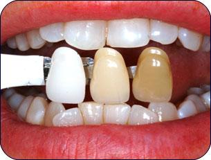 تغير الاسنان2014 اسباب تغير الاسنان