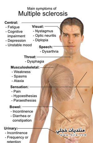 التصلب المتعدد 2013- اعراض تصلب
