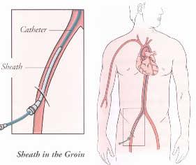 ماهى امراض القلب 2013 كيفيه