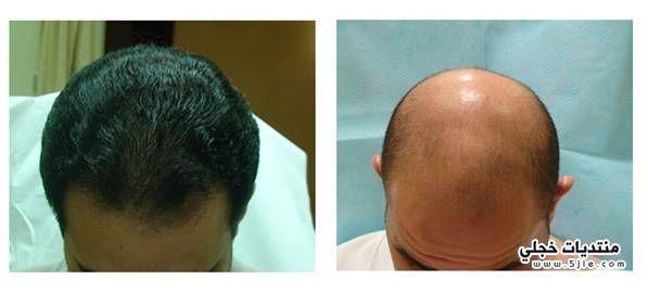 زراعة الشعر بطريقه الإقتطاف