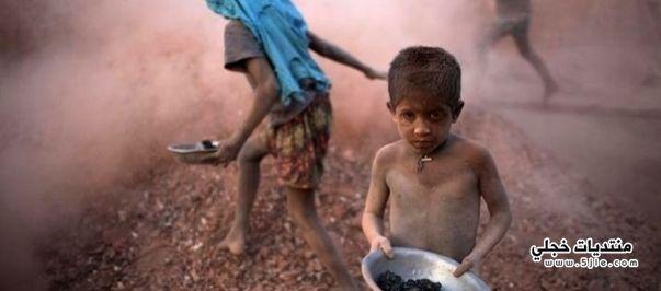 الفقراء اكثر عرضة لحروق الماء