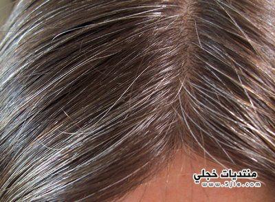 اسباب ظهور الشعر الابيض مبكر