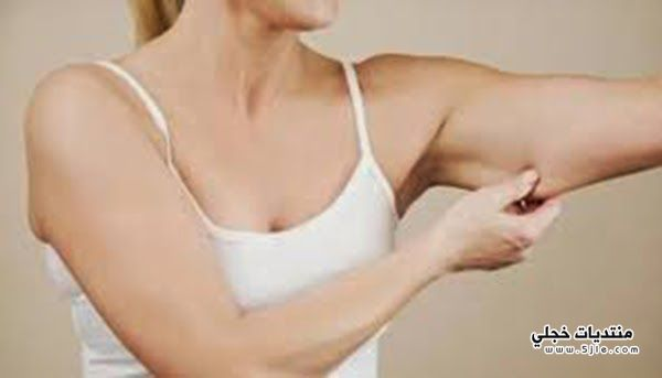 ترهلات البشرة خسارة الوزن ترهلات