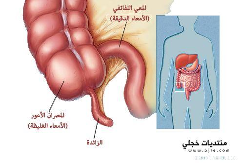 اعراض الذائده الدوديه 2013 علاج