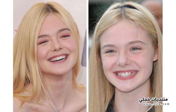 ابتسامات النجمات وبعد عمليات التجميل