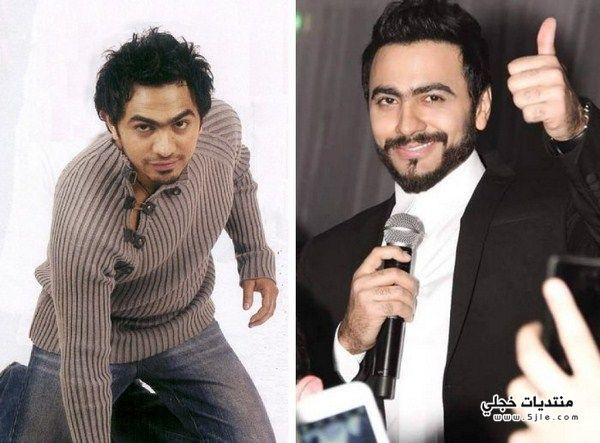 فنانين العرب وبعد عمليات التجميل