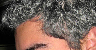 التخلص الشعر الابيض نصائح للتخلص