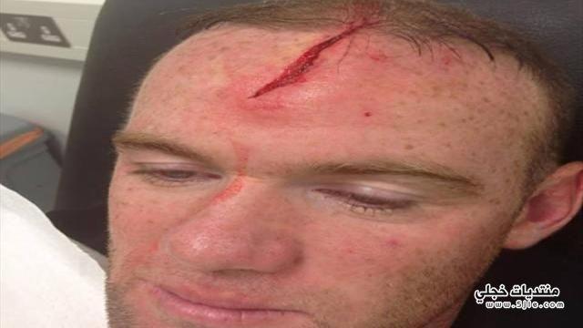 اصابة روني الراس اصابة روني