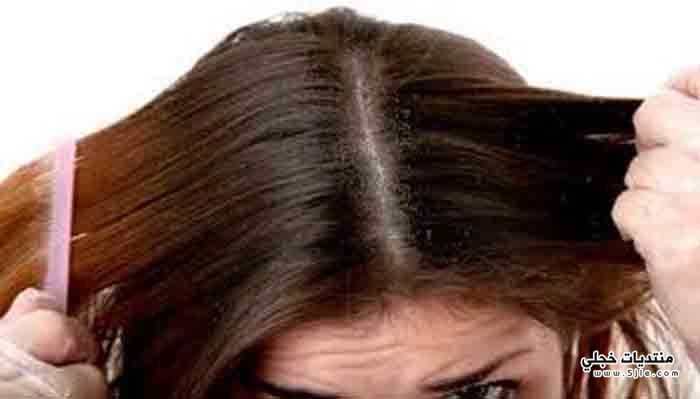 تخلصي قشرة شعركِ بالطرق الطبيعية