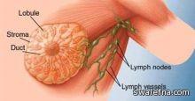 طريقة علاج سرطان الثدى