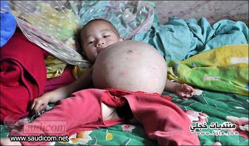 طفلة صينية عمرها واحدة